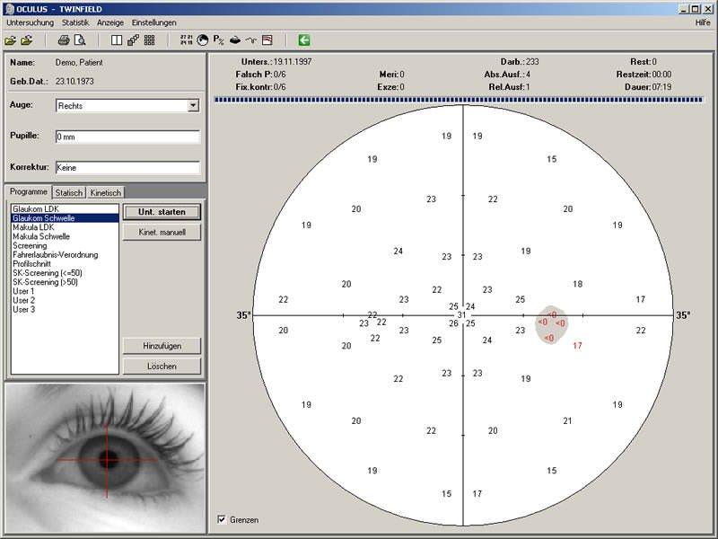 Prikaz oka za vreme ispitivanja vidnog polja