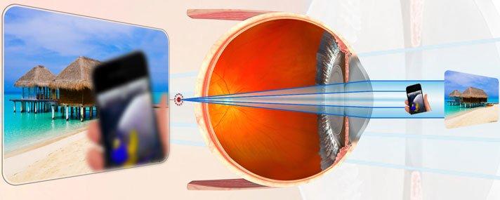 Presbyopia - Időskori távollátás