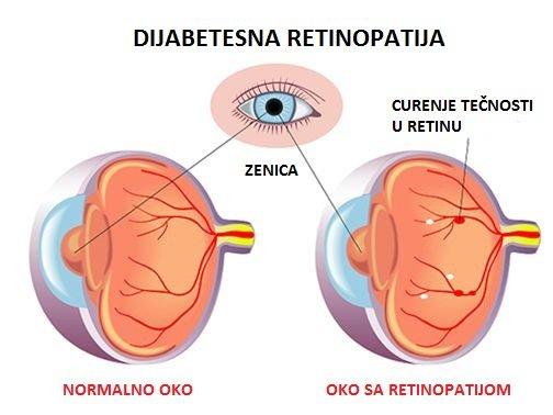 Dijabetesna retinopatija