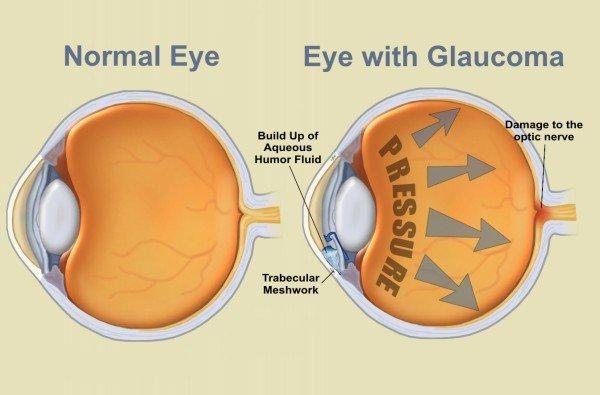 látássebészeti glaukóma 3 jövőkép, hogyan lehetne javítani